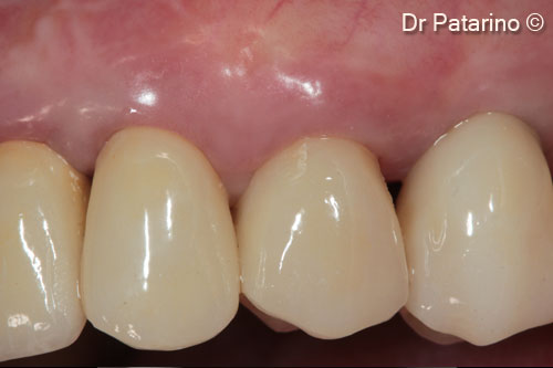 Implant positioning in the esthetic...