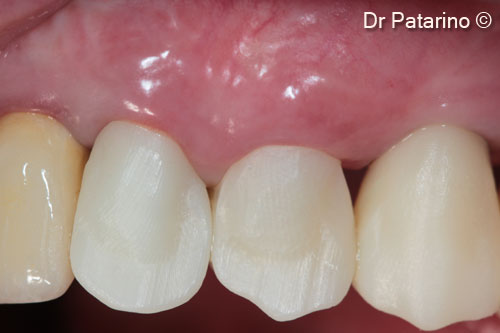 20 - Result after 7 months – final impression and esthetic test
