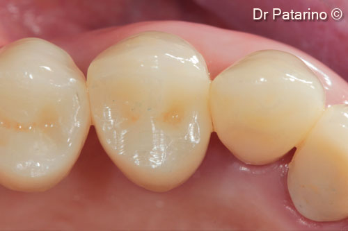 26 - Cemented prosthesis – occlusal view