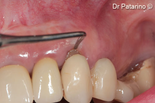 5 - Thickness of the adhesive gingiva