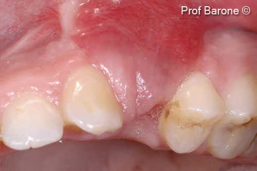 6. Soft tissue healing 6 weeks after the ridge augmentation procedure. Buccal view