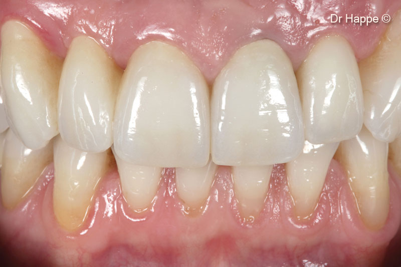 Single tooth restoration of a lateral...