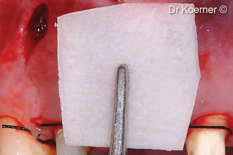 Socket rebuilding for immediate implant...