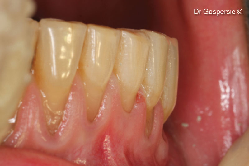 5. Enamel defects restored with composite material