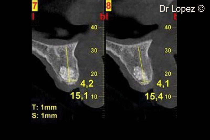 14. Post-operative cone beam scan at implant placement (8 months after surgery)