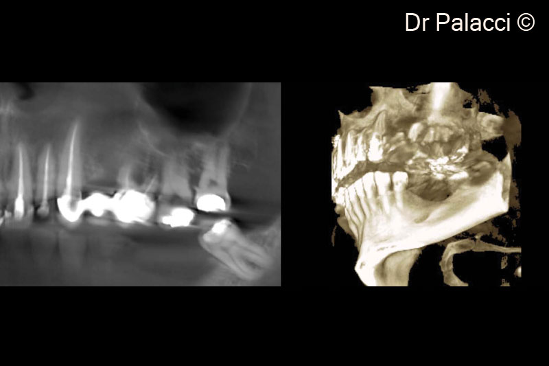 2.  3D X-rays, major bone loss around #26, #27, #28 furcation involvement. Significant concavity in #24