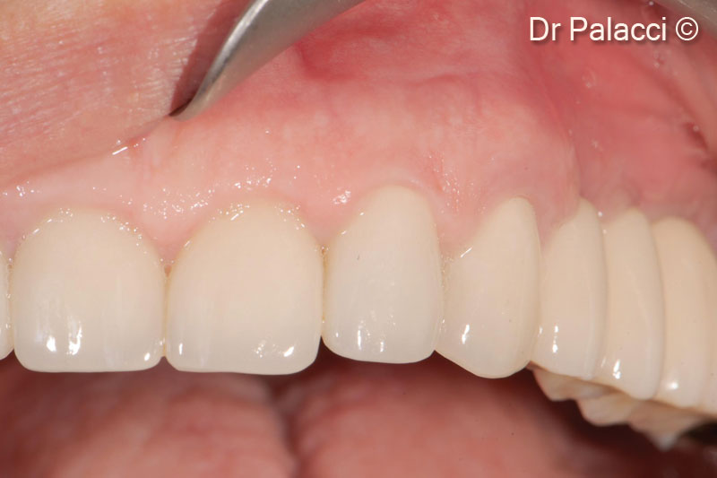 20. Final reconstruction in place (Prosthodontist Dr Christian Roux, Marseille)
