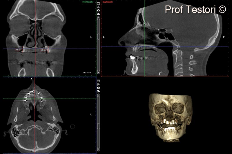14. 10-months follow-up CBCT before implant uncovering