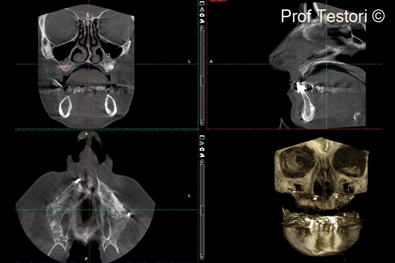 13.  6-months follow-up CBCT performed before implant placement