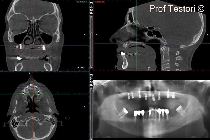 15. 10-months follow-up CBCT before implant uncovering