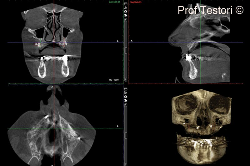 12.  6-months follow-up CBCT performed before implant placement