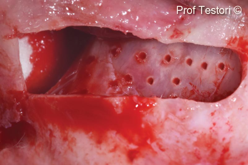 4.  Micro perforations of the nasal sinus wall to stimulate bleeding