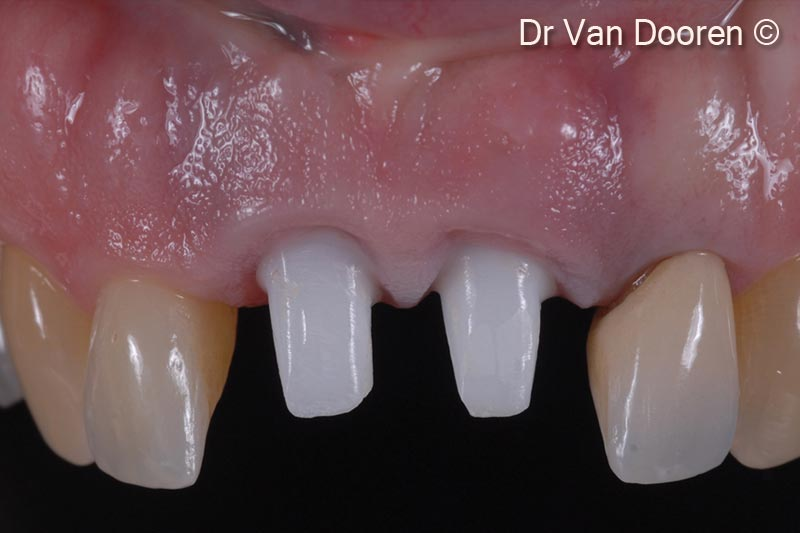 4. The old crowns were removed, and a provisional bridge was fabricated with a new design proposal. Pink composite was added to have a clear idea of the incisal edge position/toothform and artificial gingival replacement