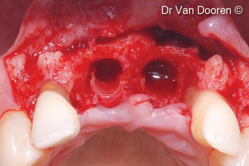 9. Considerable bone loss around the existing implants and mesially to the lateral incisors: the two implants were removed