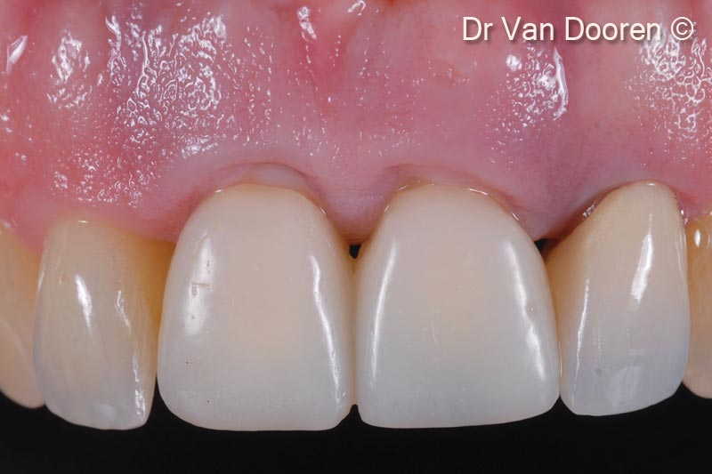 1. The patient presented with severe peri-implantitis around 2 central incisors zirconia implants