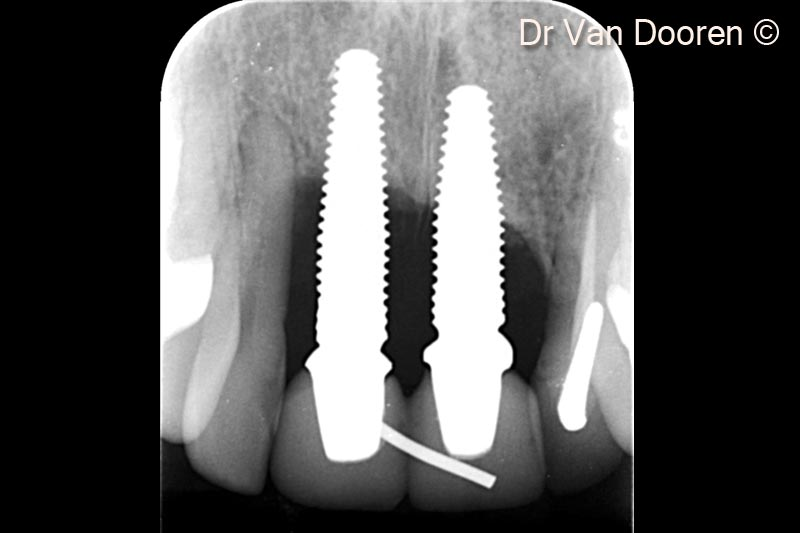 2. The patient presented with severe peri-implantitis around 2 central incisors zirconia implants