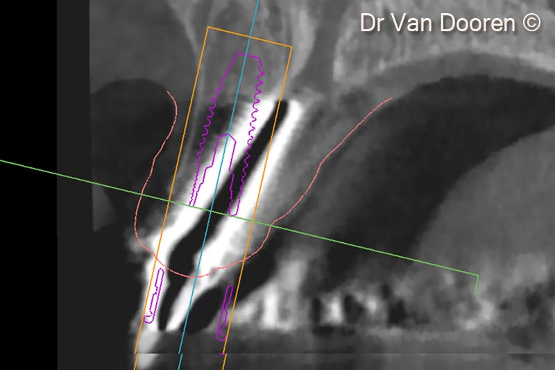 6. Superimposing the STL file and the Dicom files in the planning software (MSoft/MIS) allowed us to plan the exact position of the new implant