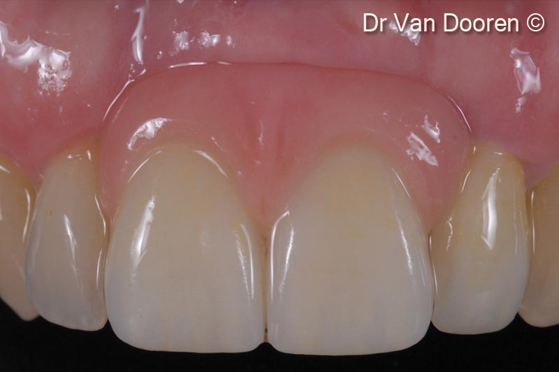 18. Final clinical result. Note the integration and gingival health
