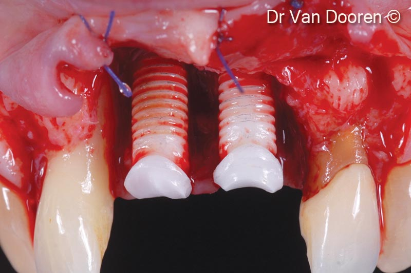 8.  Considerable bone loss around the existing implants and mesially to the lateral incisors: the two implants were removed