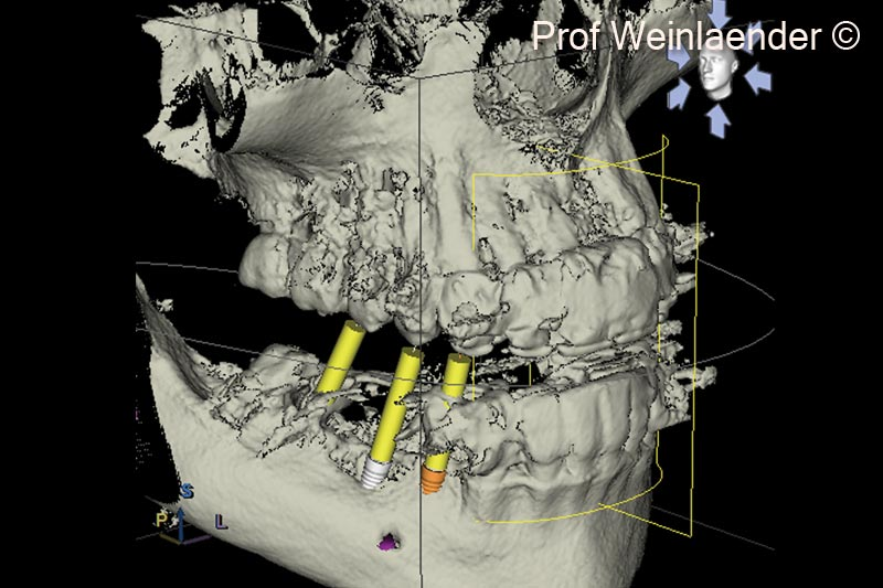 9. 3D Surface rendering DVT. Demonstration of narrow ridge with exposed implants in positions #44 and #45