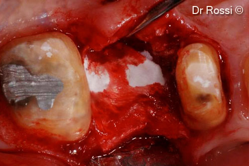 Implant placed in a bony peak where...