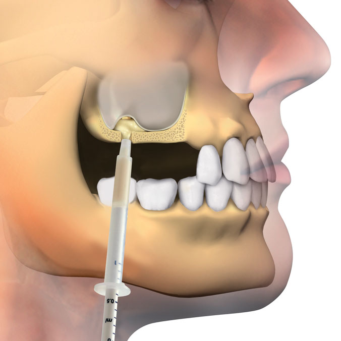 Osteobiol crestal access sinus lift