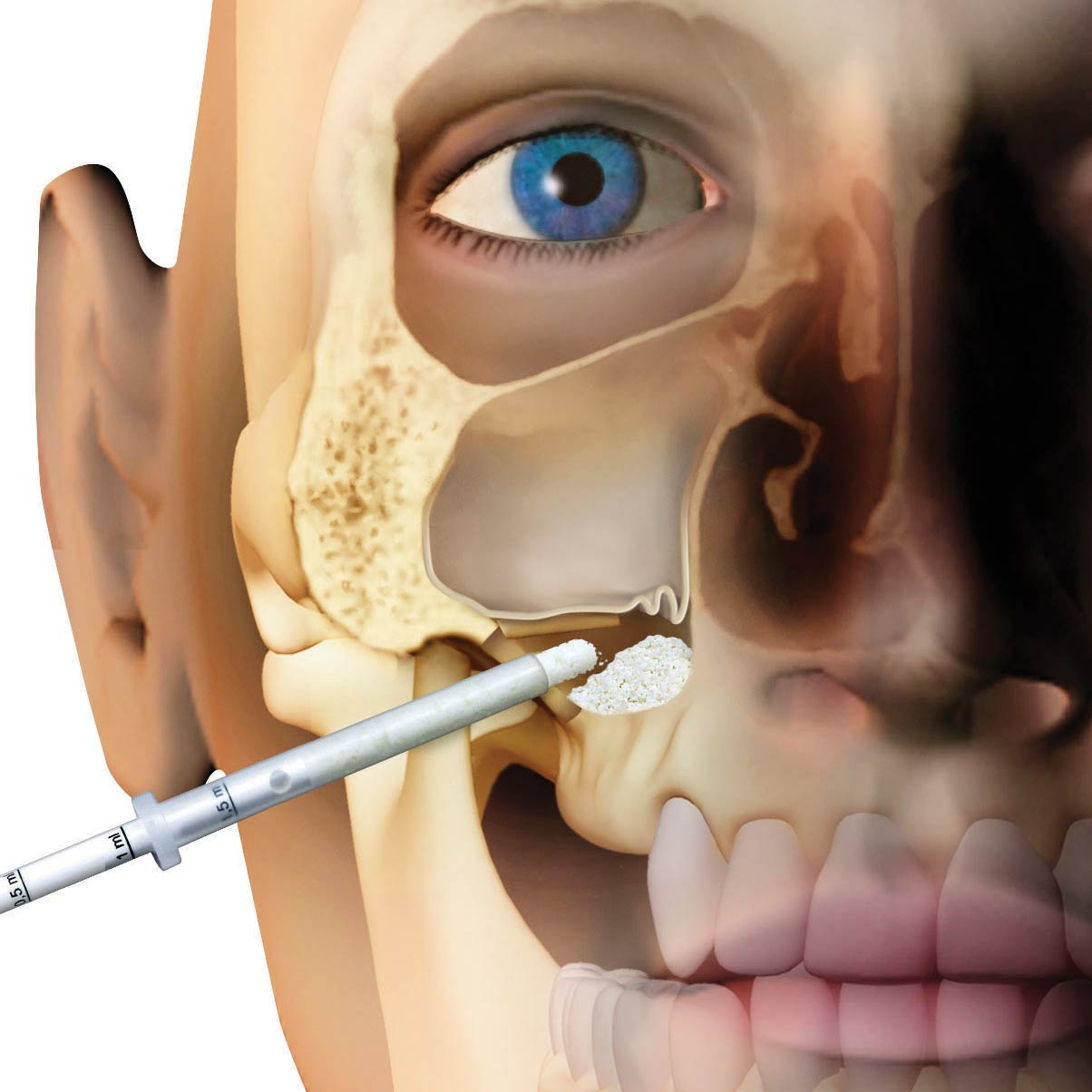Osteobiol lateral access sinus lift