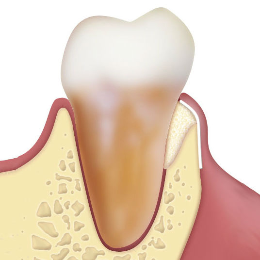 Osteobiol periodontal regeneration